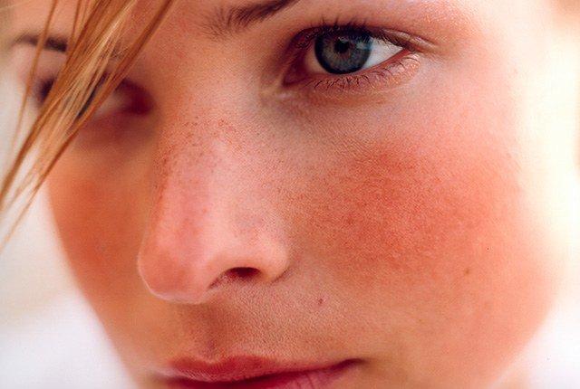 Verzorg je huid - Rio Rosa Mosqueta